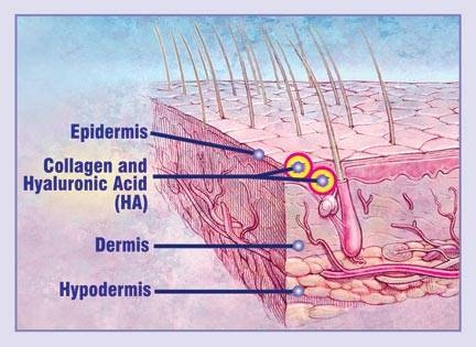 graphic shows HA and collagen